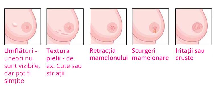 cancer la san simptome