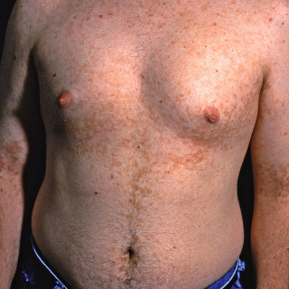 silna anemie v tehotenstvi detoxifiere colon d92