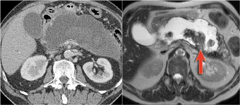 abdominal cancer mri