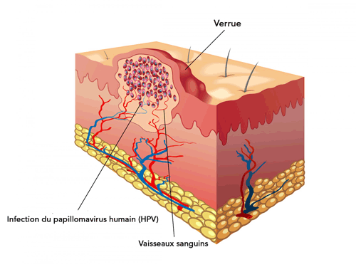 papillomavirus traitement huiles essentielles)