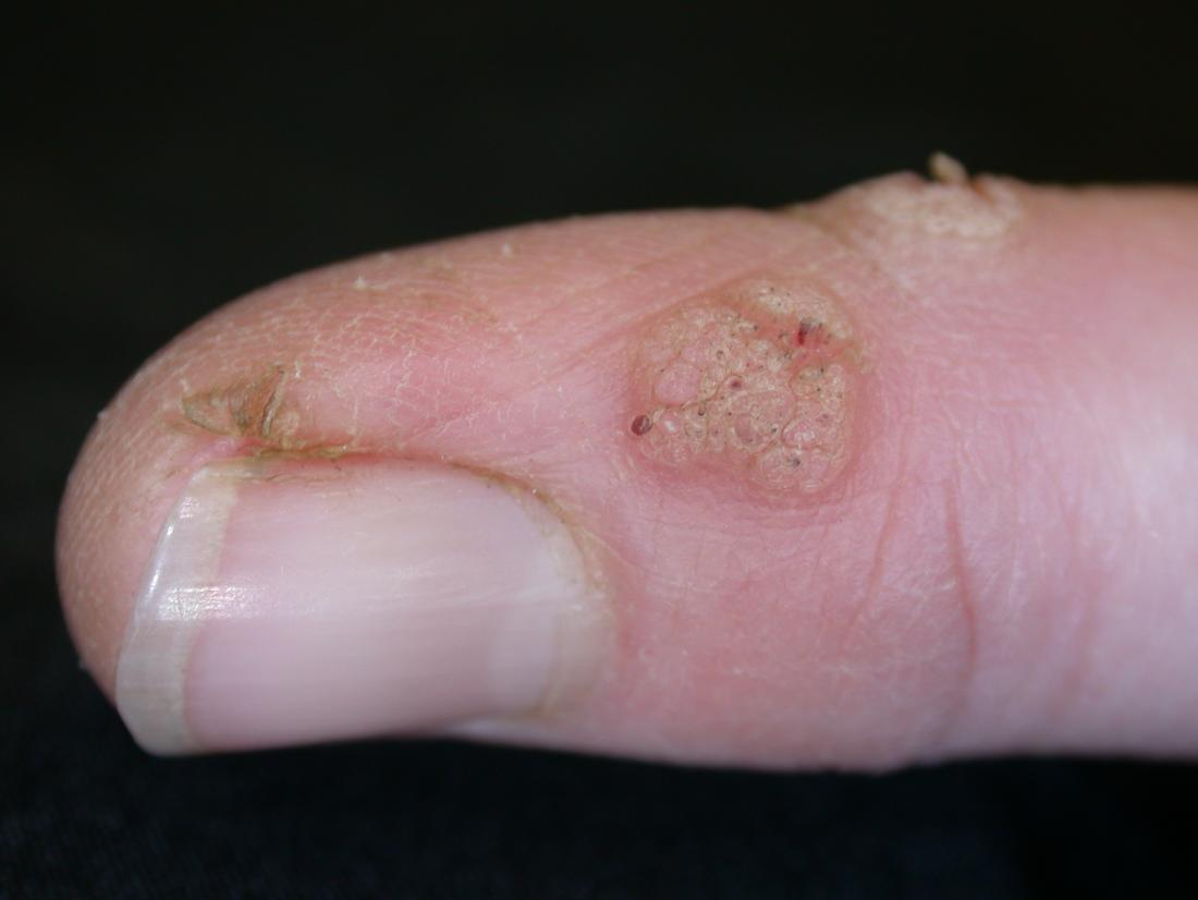 warts on hands and fingers)