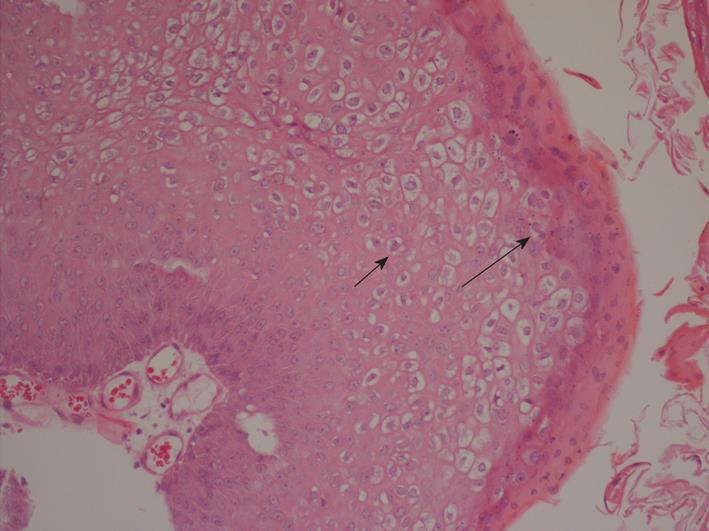 hyperkeratosis papilloma