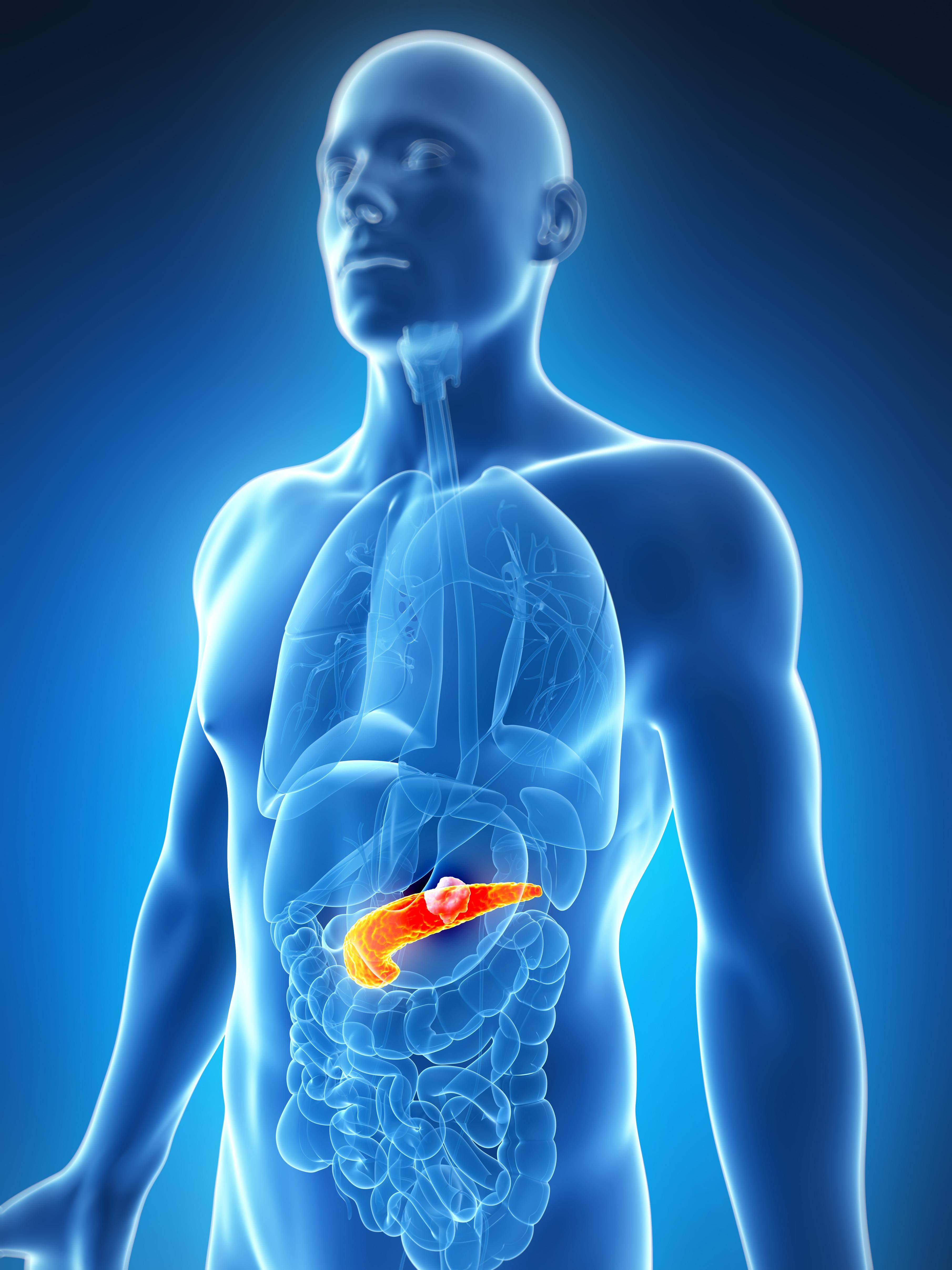 cancer la cap de pancreas