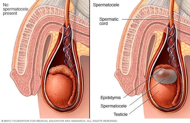 testicular cancer or epididymis