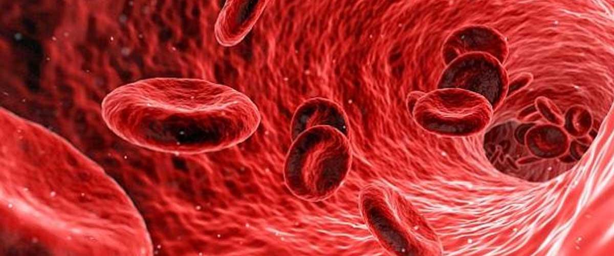 cancer la sange cauze)