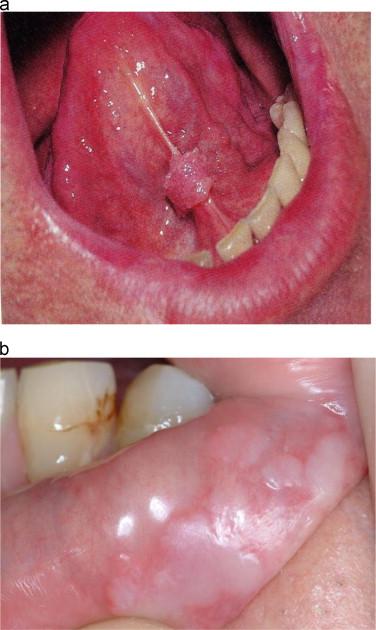 papilloma on base of tongue