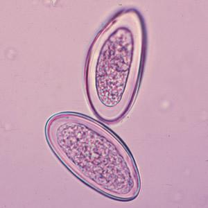 enterobius vermicularis egg in stool)