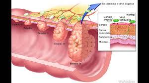 cancerul de colon amg cancer benign or malignant
