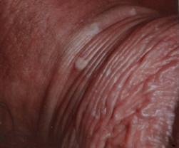 trattamento papilloma virus uomo)