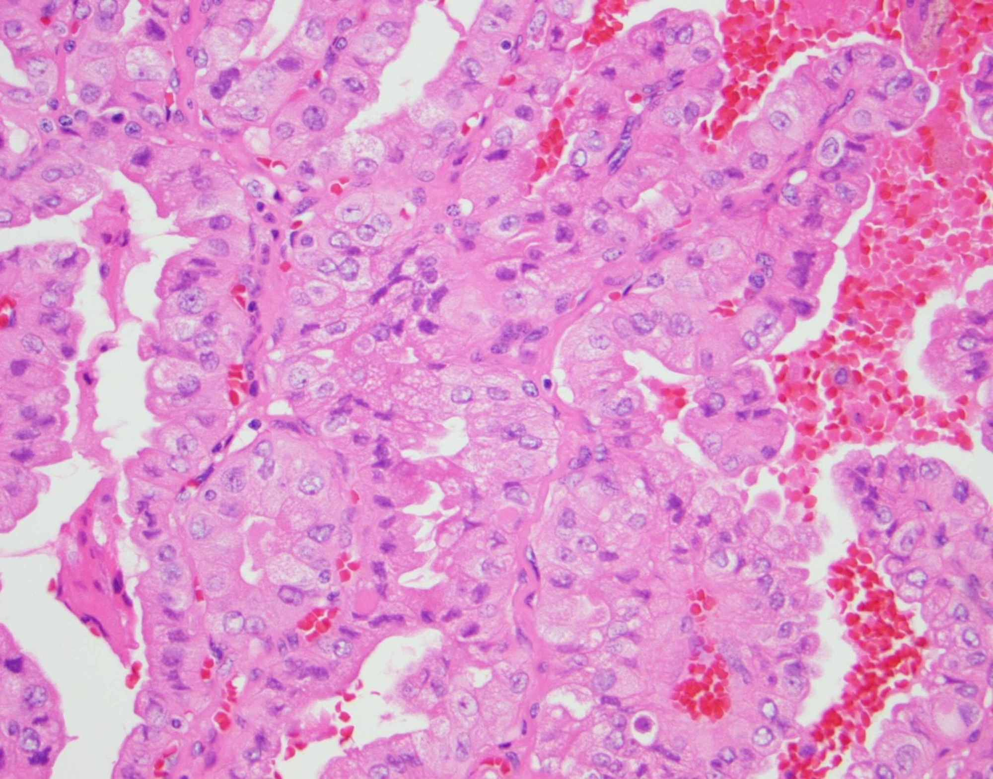 papillary thyroid cancer tall cell variant prognosis)