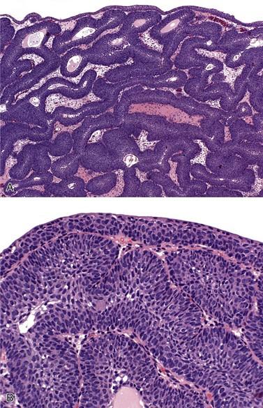 virus papiloma hombres imagenes laryngeal papilloma with dysplasia