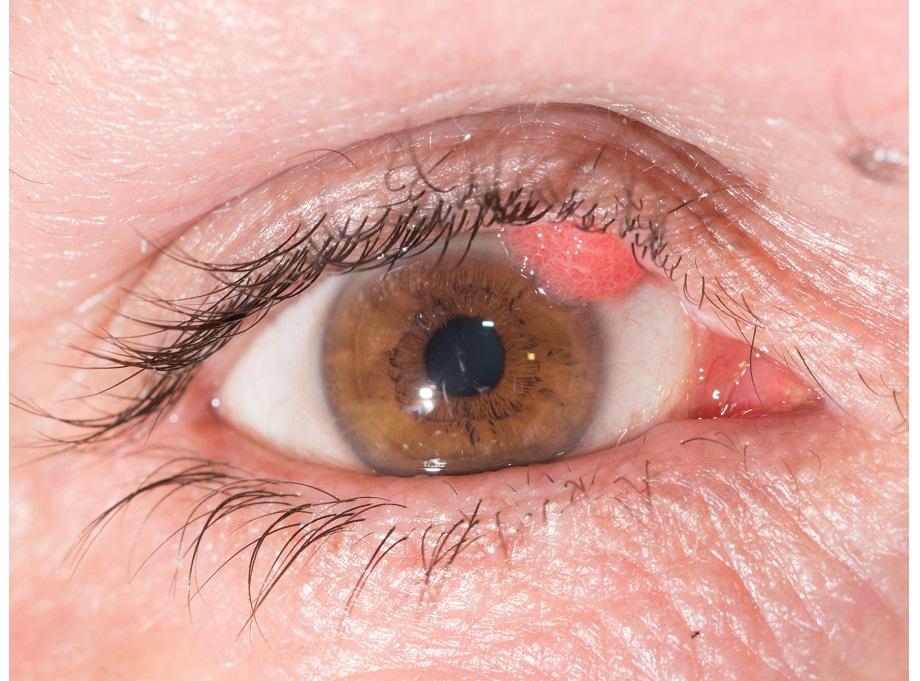 hpv eye infection papillomavirus vaccin risques