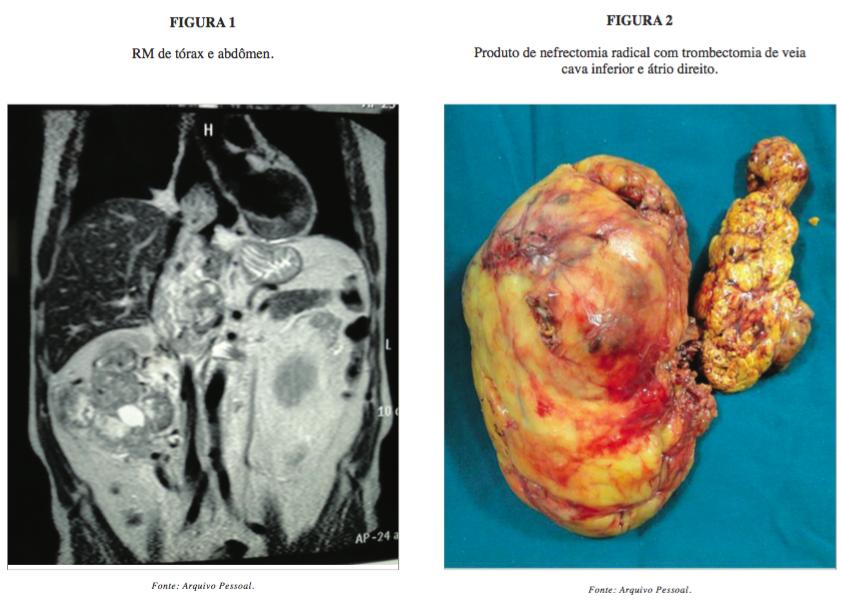 cancer renal de celulas claras)
