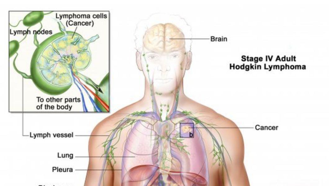 cancerul limfatic cauze virus del papiloma numero 18