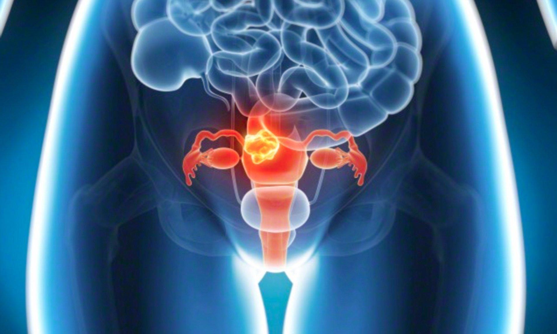 ovarian cancer urine smell