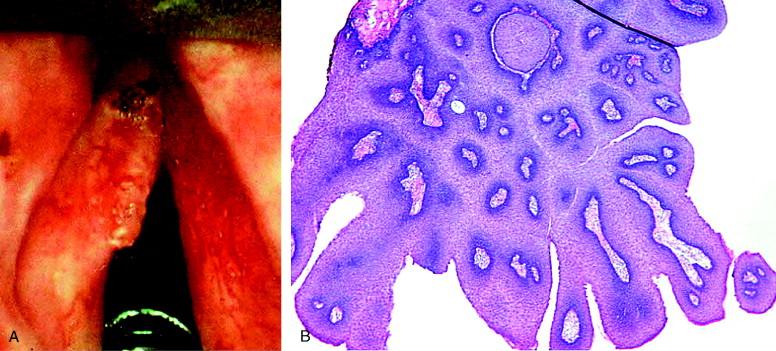 laryngeal papillomatosis chemotherapy