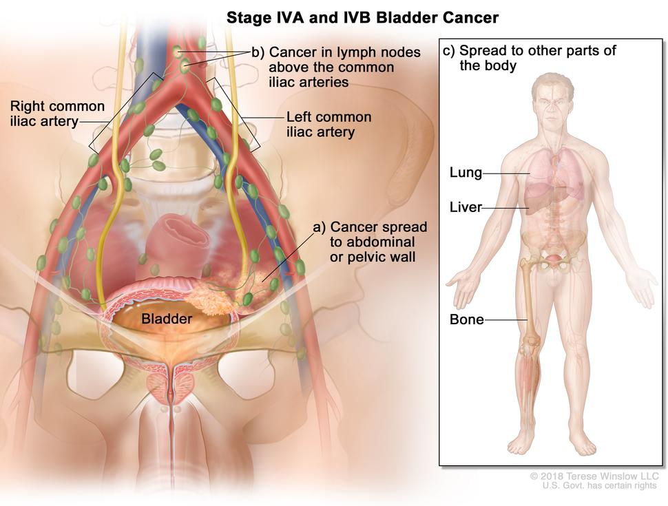 does hpv cause bladder cancer