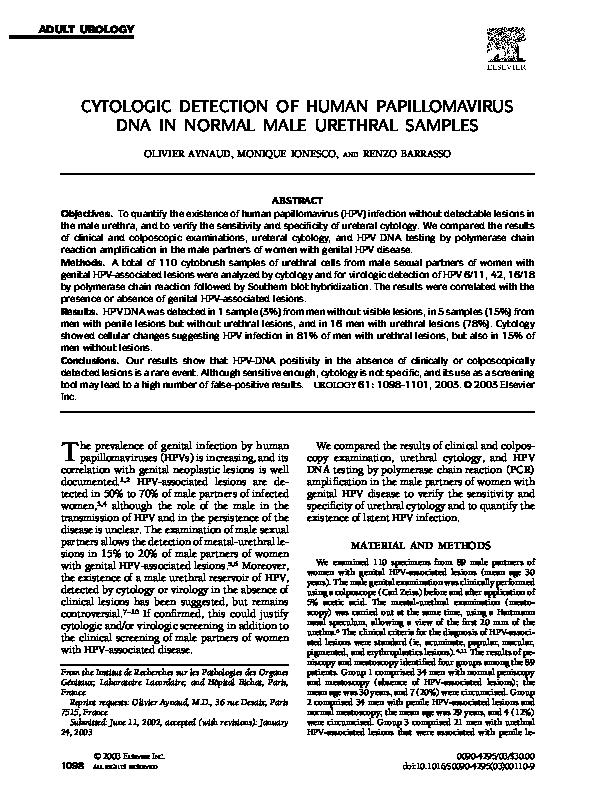 laser sur papillomavirus