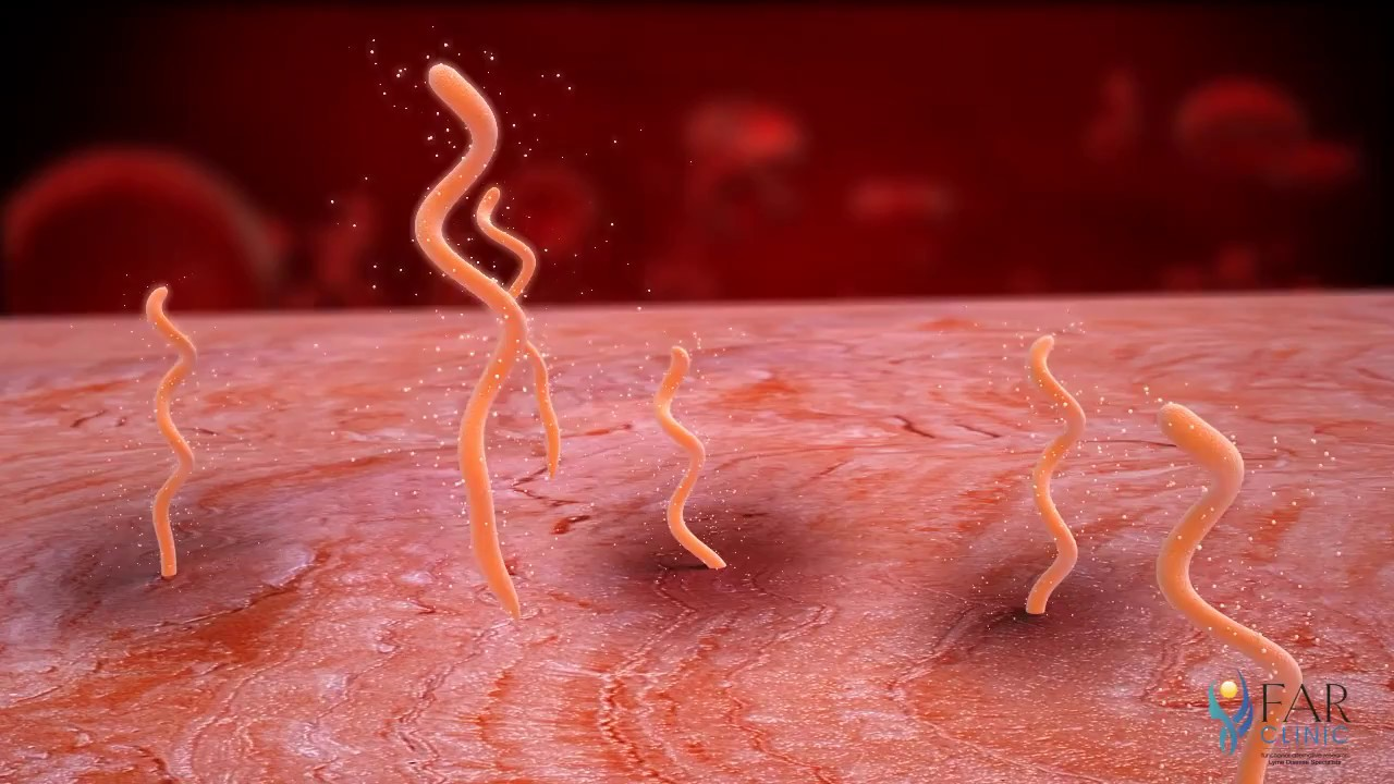 viermi paraziti in talpa