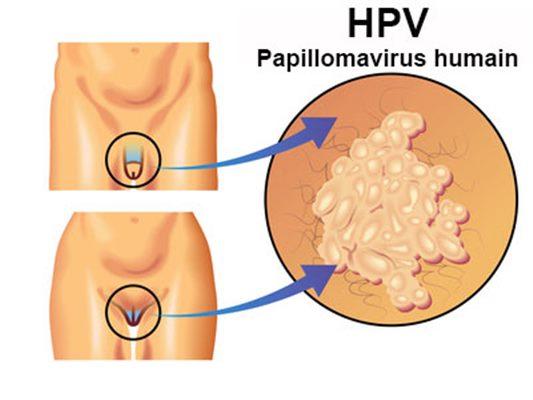 papillomavirus homme image)