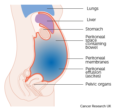 cancer related abdominal pain