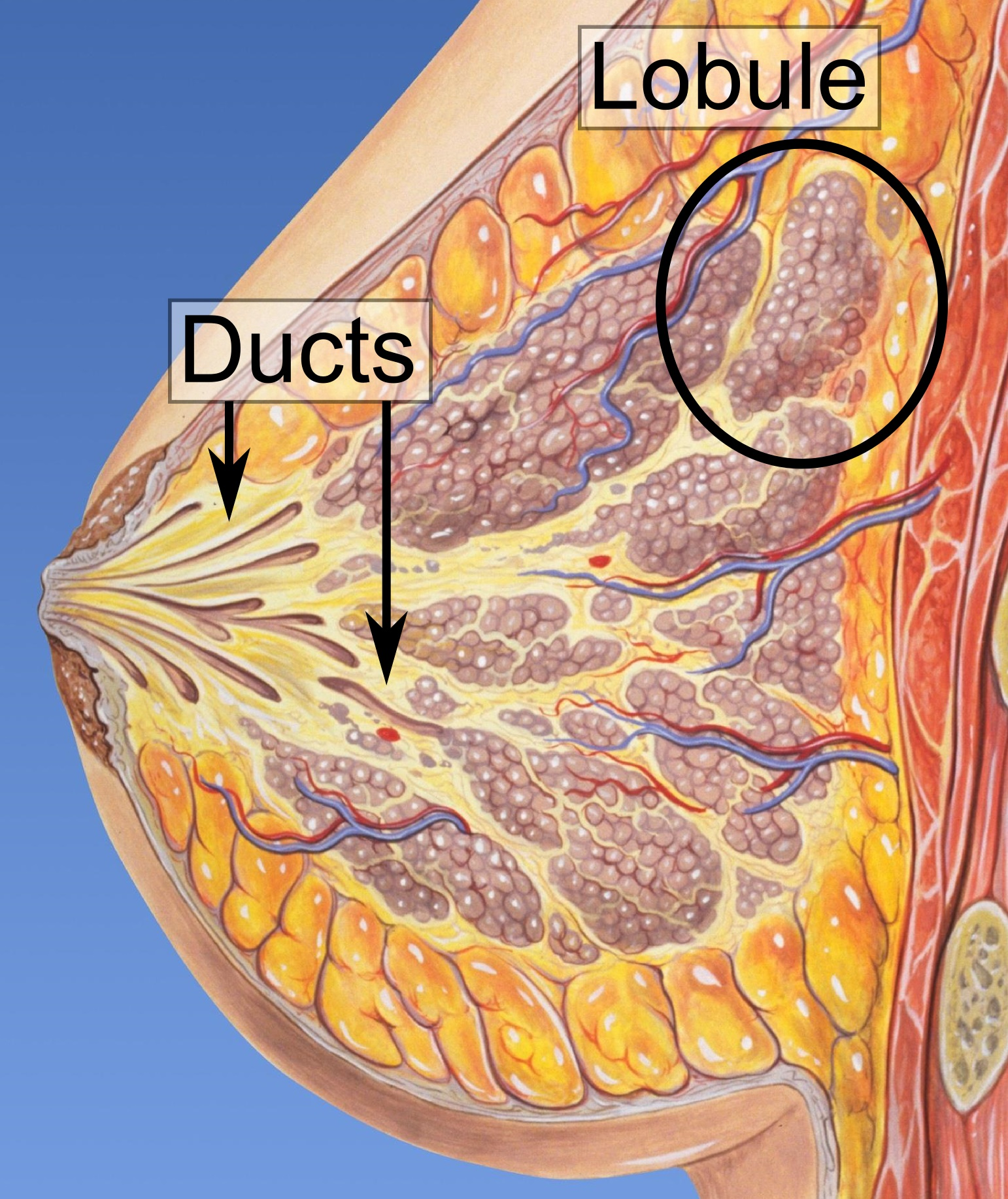 how fast do intraductal papillomas grow)