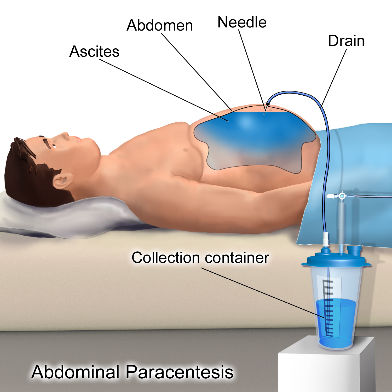 cancer peritoneal liquido