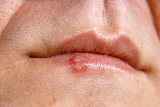 hpv ulcer treatment