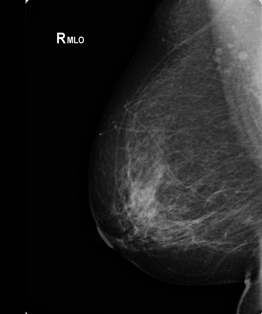 papilloma intraductal mamar