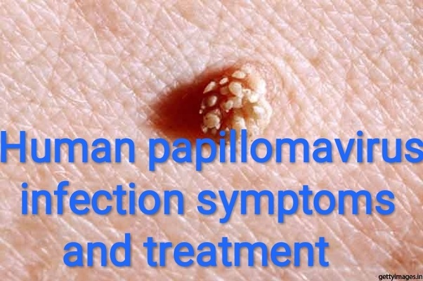 what is human papillomavirus (hpv) symptoms