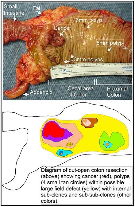 Cancer esofagian