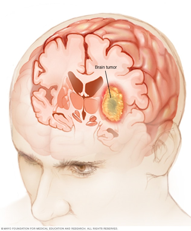 cancer cerebral sintomas y signos
