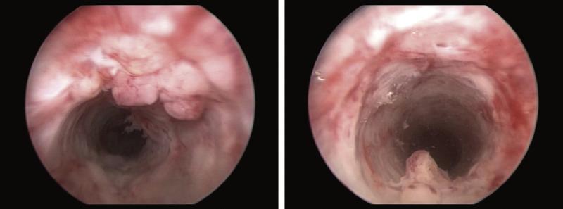 hpv lesion urethra)