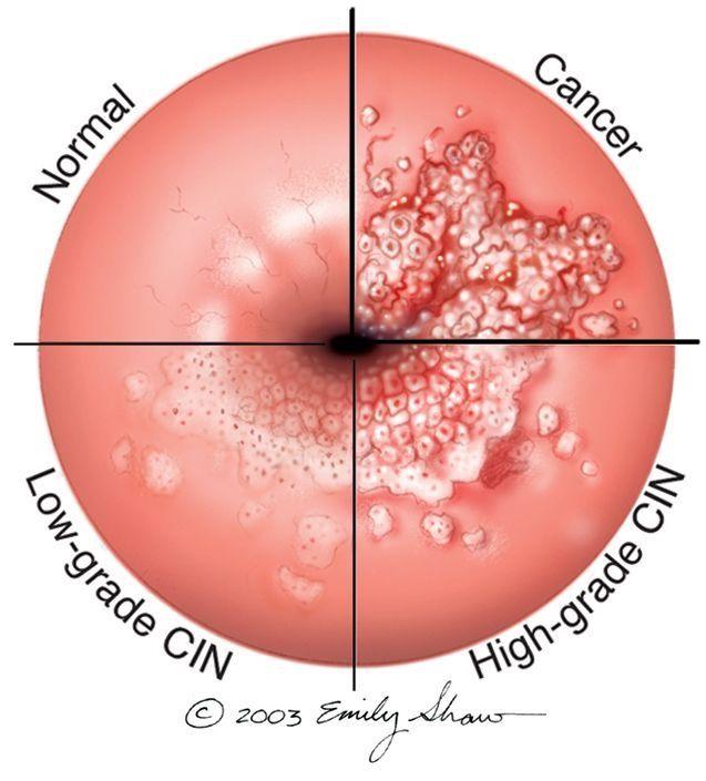 papillomavirus colon