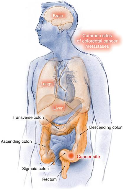 cancer colon metastases