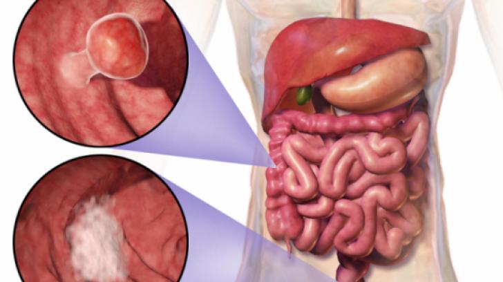 cancerul intestinului gros)