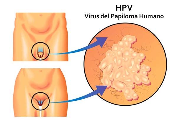 papillomavirus cancer genital