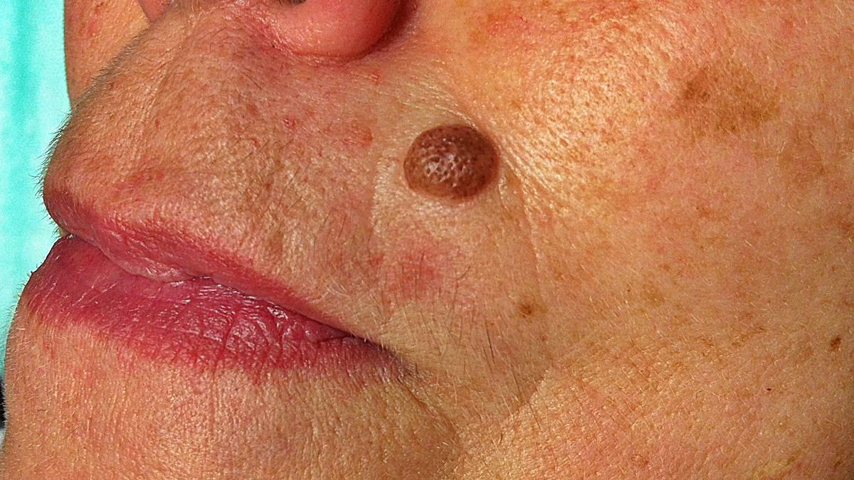 hpv verrugas contagio