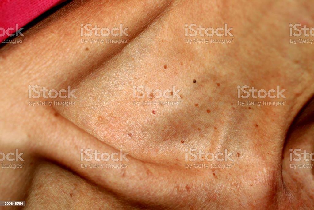 papiloma en la piel imagenes
