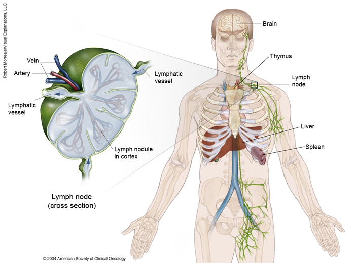 cancerul hodgkin