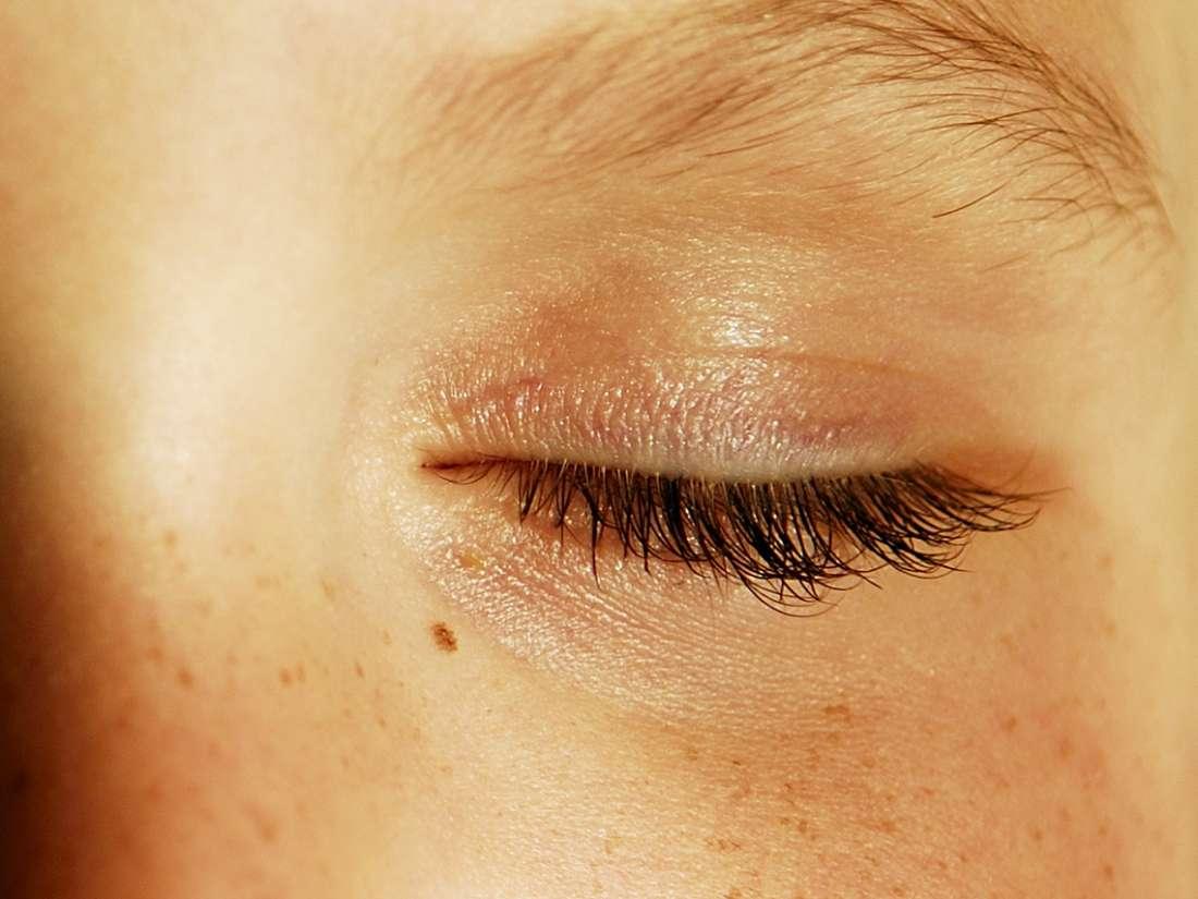 hpv on eyelid)