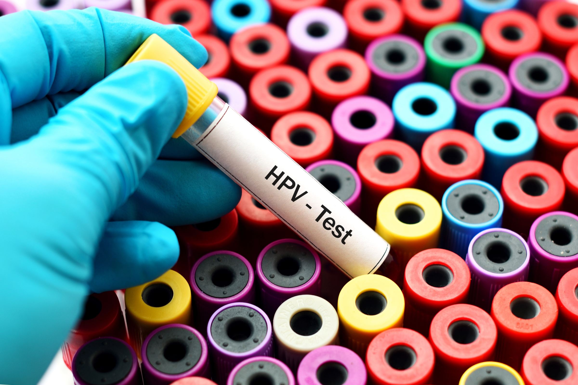 antibiotique contre papillomavirus)
