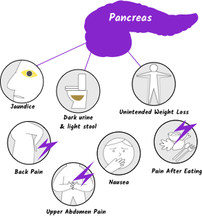 pancreatic cancer acid reflux