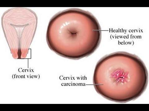 cervical cancer ki jankari in hindi