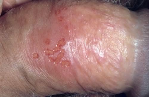 papilloma virus la barbati