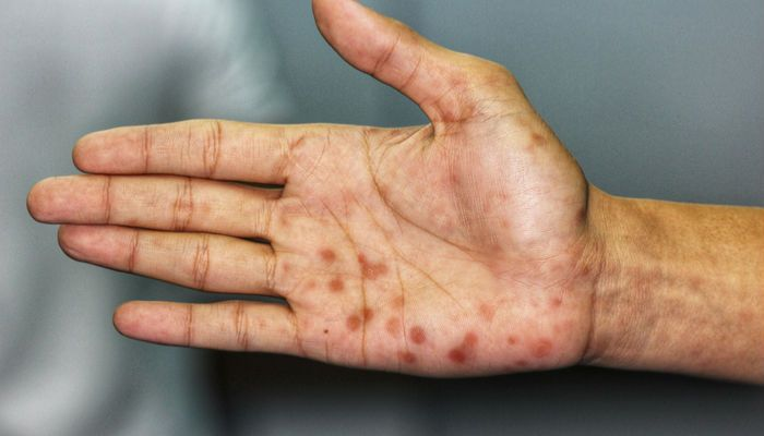 hpv vaccine skin rash