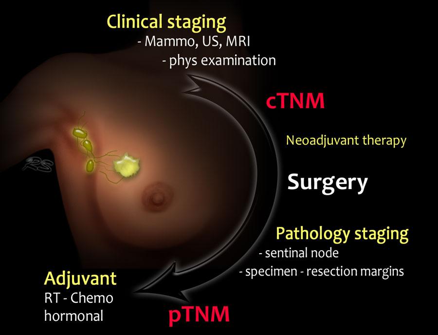 hormonal cancer diagnosis)