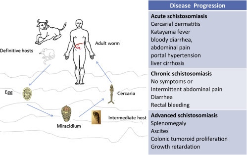 schistosomiasis symptoms