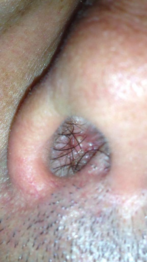 Ultrasunete de decodare a vezicii urinare și a prostatei la bărbați