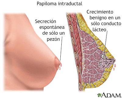 papiloma ductal mamario